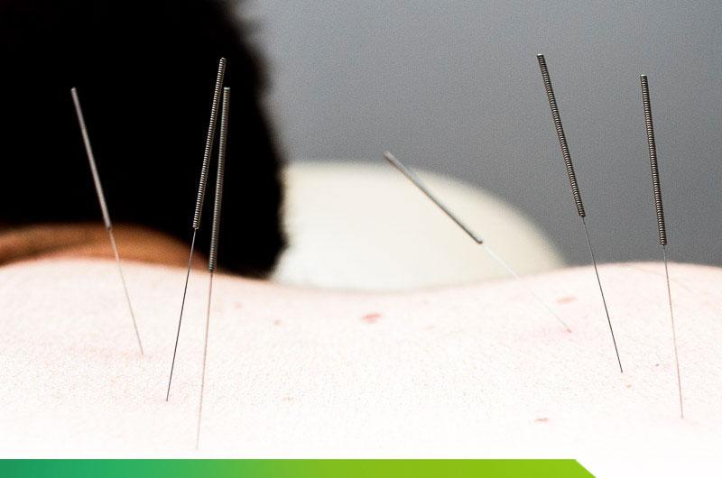 Czym jest akupunktura kosmetyczna?