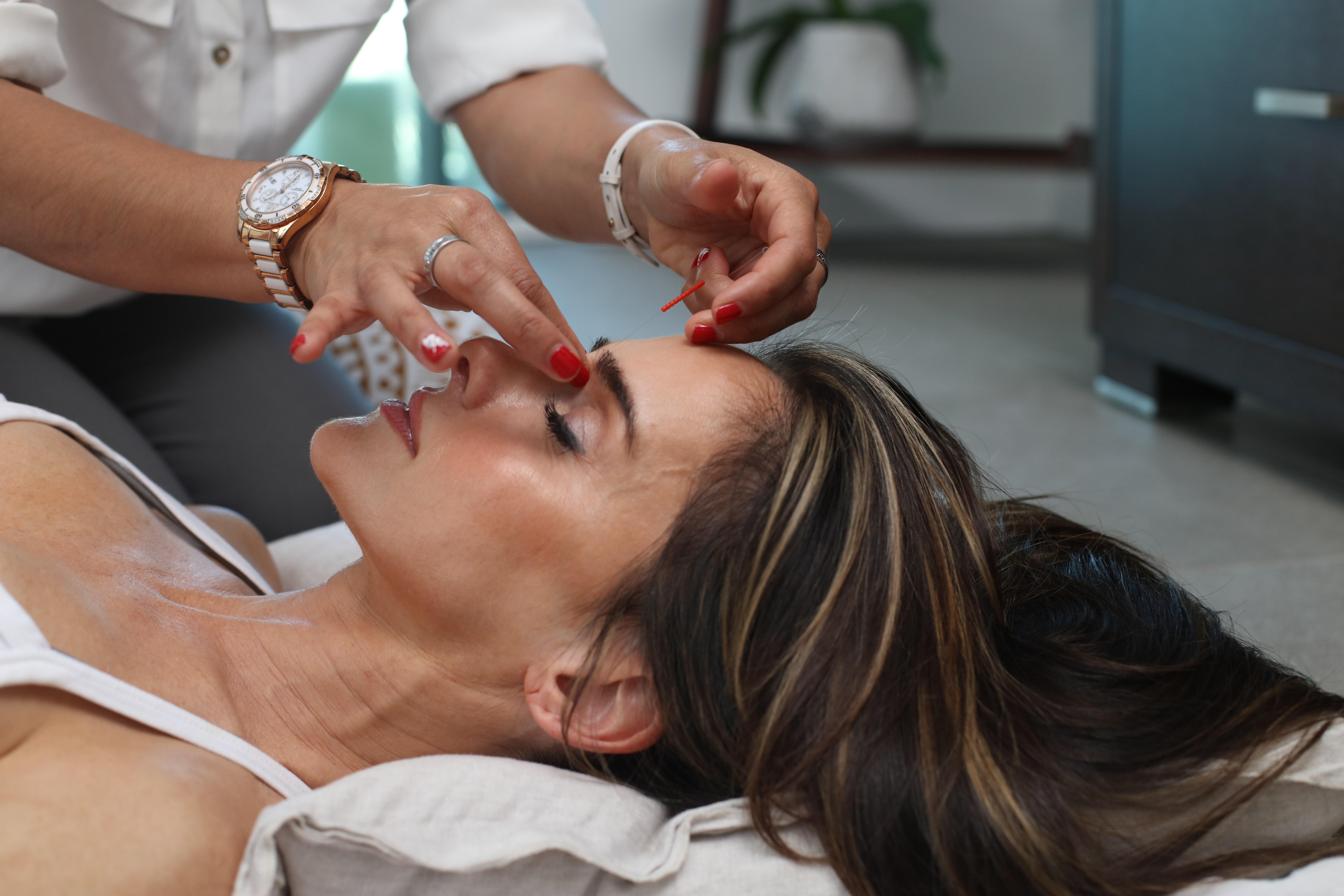 Akupunktura w terapii udaru mózgu